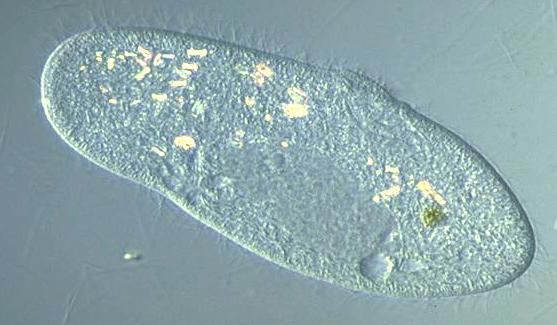 Paramecium Caudatum Under A Microscope start